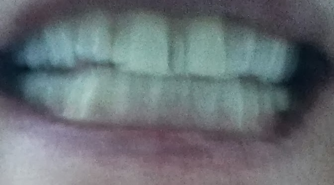 AV min tand…. og pengepung